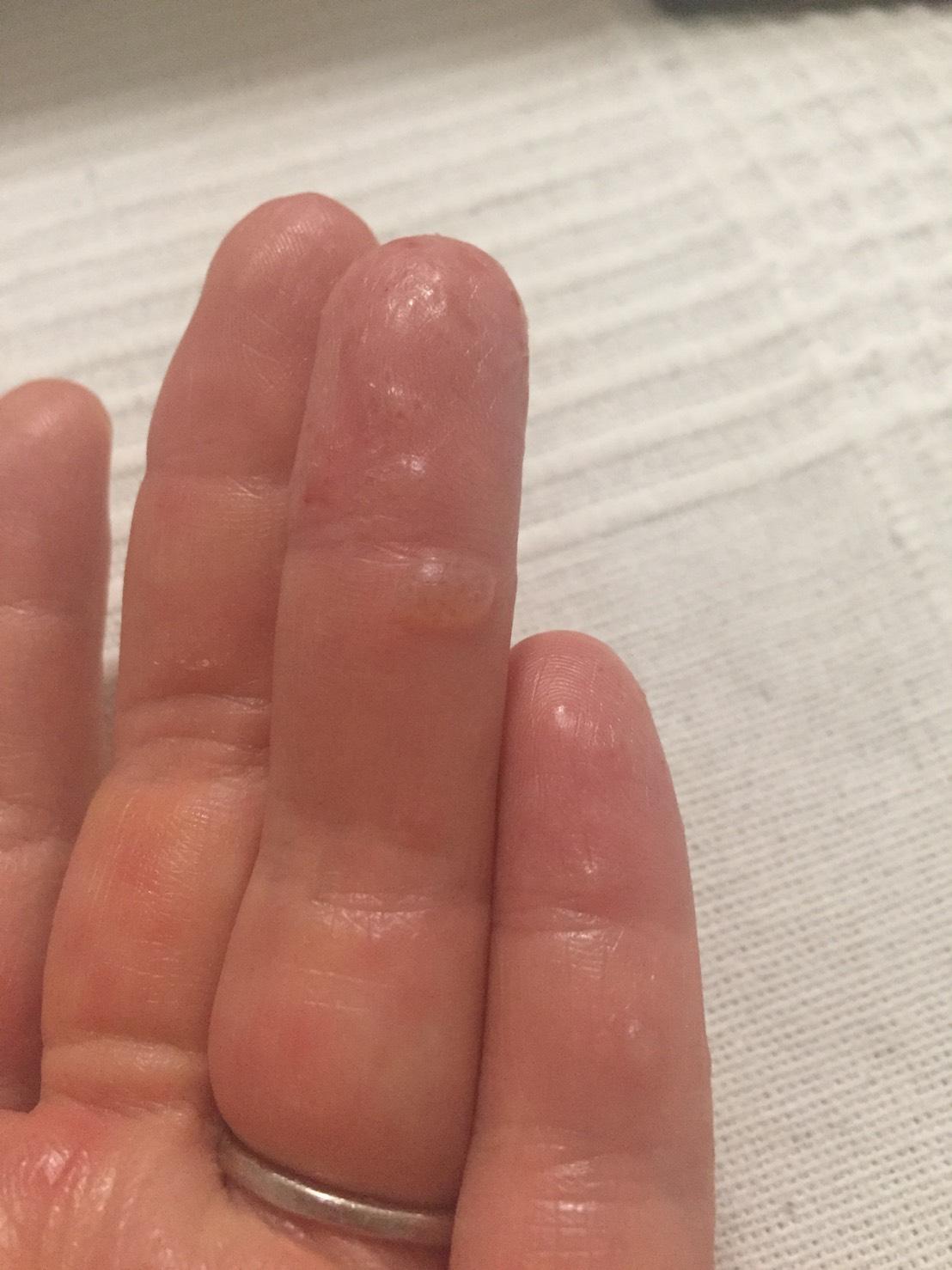 水泡 かゆい 指